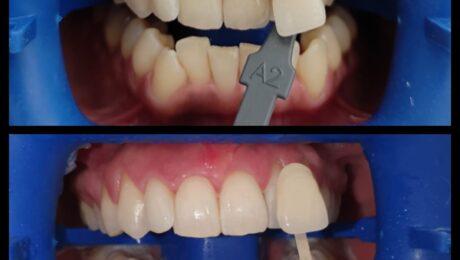 izbjeljivanje zubiju