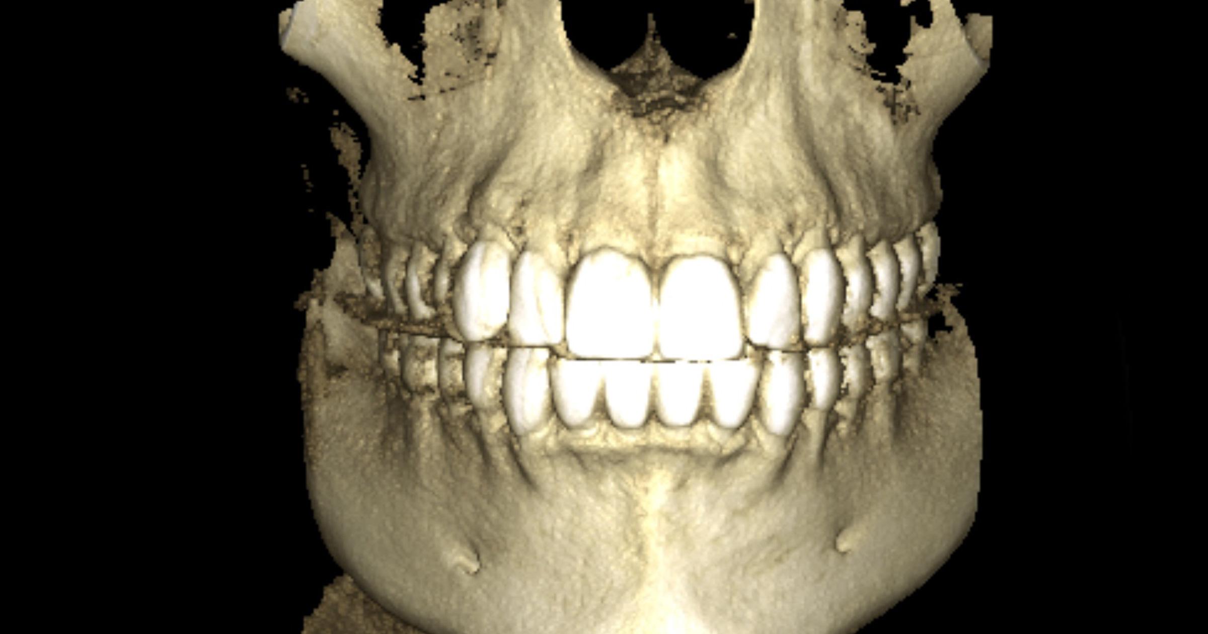 3D dijagnostika
