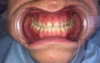 operacija čeljusti