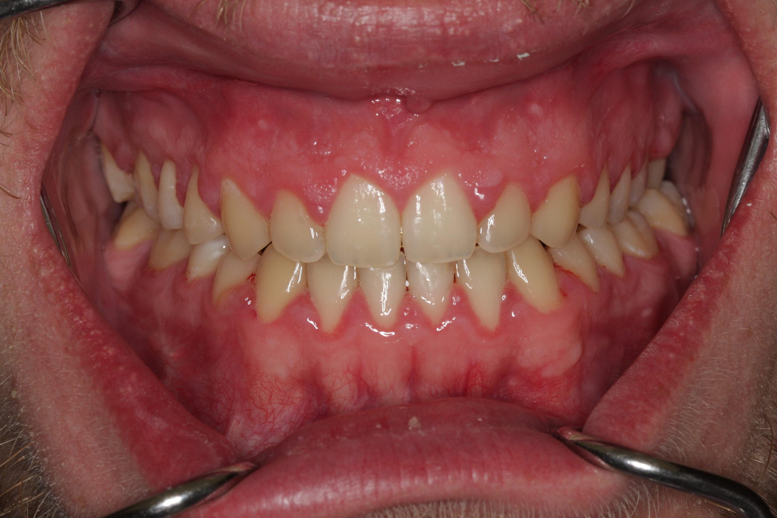 operacija čeljusti poslije